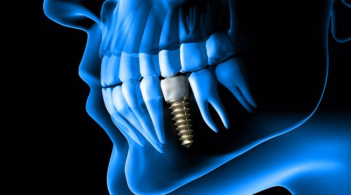 Дентална имплантация с базални импланти