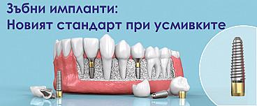 Поставяне на зъбни импланти: Новият стандарт при усмивките
