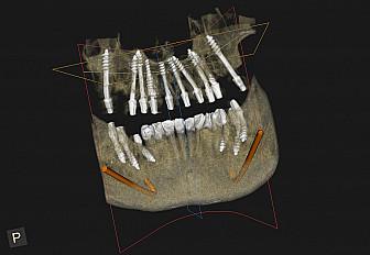 Зъбни импланти: Митове и факти