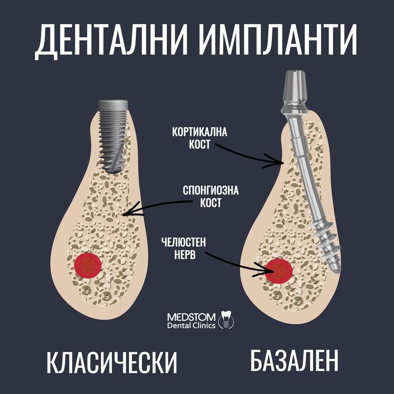 разлика импланти класически