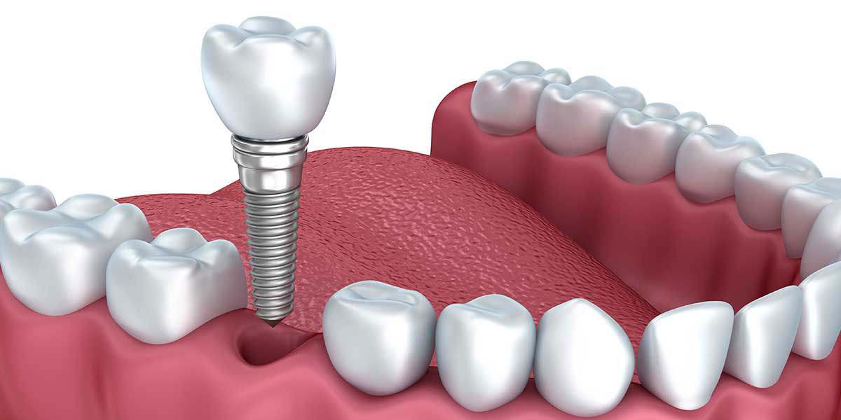 поставяне единичен имплант зъб