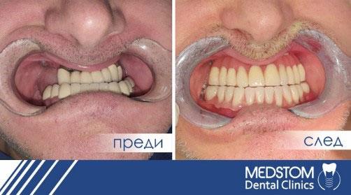 преди и след базални импланти