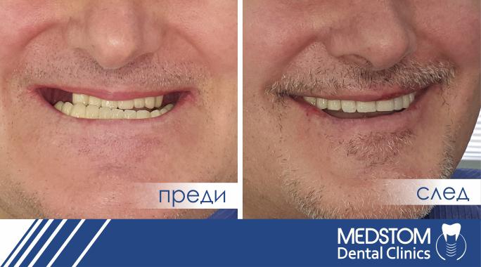 преди и след зъбни импланти